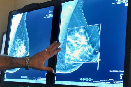 Healing process after breast cancer surgery may trigger cancer to spread, study says