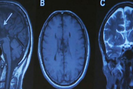 Just one concussion could increase Parkinson's risk