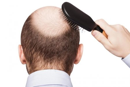 Side effects include … a potential treatment for baldness