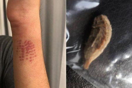 Mom warns of venomous caterpillars after son's harrowing medical scare