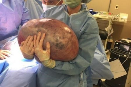 GRAPHIC IMAGES: Alabama woman's 50-pound weight gain turns out to be massive ovarian cyst