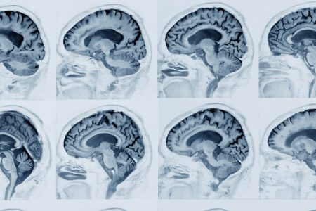 A Common Virus May Play Role in Alzheimer's Disease, Study Finds