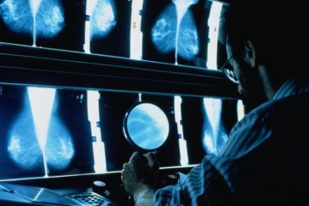Breast Cancer Screenings Can Cause More Harm Than Good in Women Who Are at Low Risk