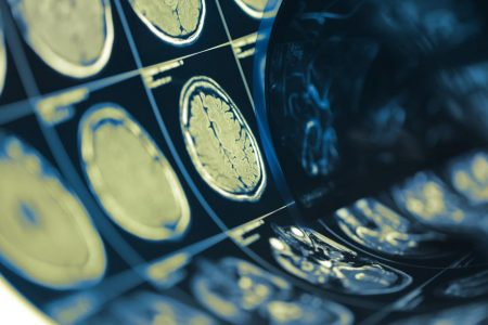 Borrowing from the cancer playbook to find treatment for Alzheimer's disease
