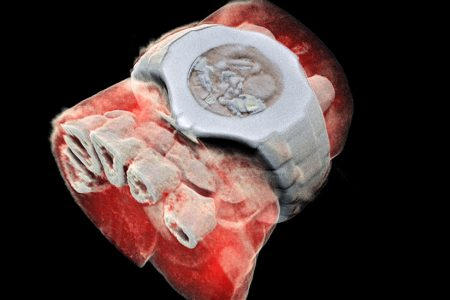 3D Color X-rays Could Help Spot Deadly Disease Without Surgery