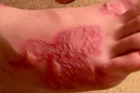 How do you get hookworms? Teen's infection raises questions