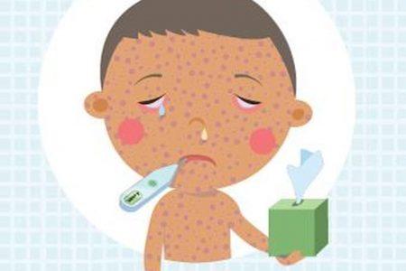 Possible measles exposure in Loudoun County, Va.