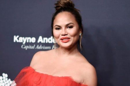 Chrissy Teigen falls, bruises leg the day before the 2018 Emmy Awards
