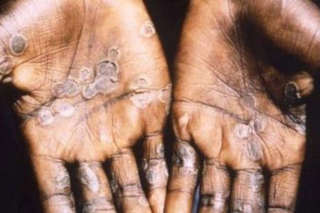 UK health care worker contracts rare monkeypox virus in third case