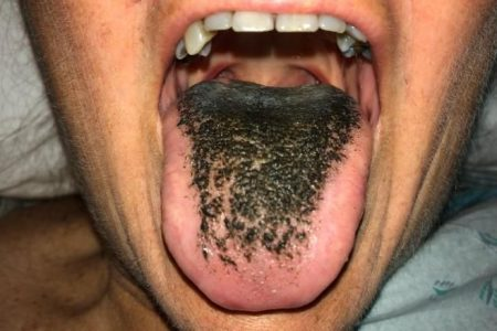 Patient develops 'black hairy tongue' from medication
