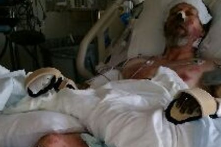 Man who nearly died from dog lick infection hopes to one day walk