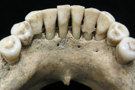 Rare blue pigment found in medieval woman's teeth rewrites history – CNN