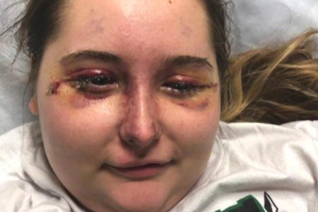 Teen permanently blinded as mystery illness causes severe swelling, bruised face – Fox News