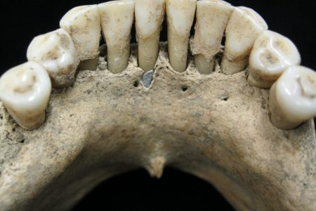 Medieval skeleton found with rare, expensive blue ink embedded in teeth, could rewrite women's history – USA TODAY