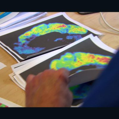 Newly discovered Alzheimer's genes further hope for future treatments – CNN