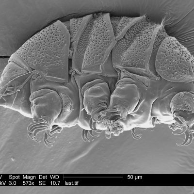 Science Says: Tiny 'water bears' can teach us about survival – The Associated Press