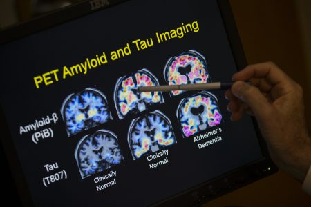 Report finds few seniors are getting routine memory checkups – The Associated Press